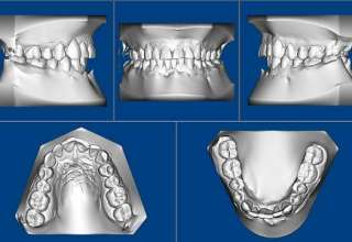 3D digital orthodontist