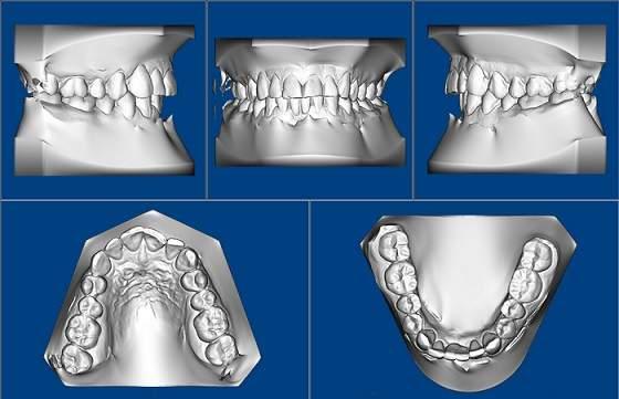3D digital orthodontist